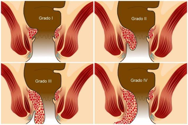 quattro gradi emorroidi interne